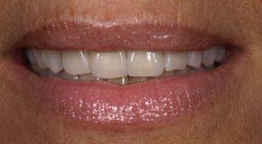 Prothèses dentaires. Des prix enfin plafonnés